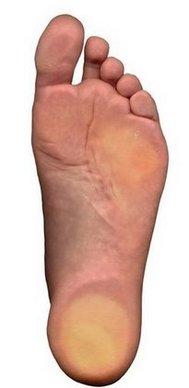 Flatfoot__fallen_arches_.jpg