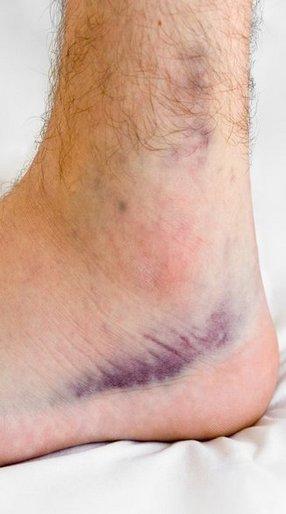 sprains-strains-2.jpg