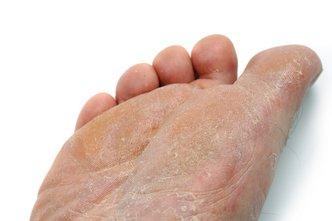Murfreesboro Podiatrist | Murfreesboro Athlete's Foot | TN | Mid State Podiatry |