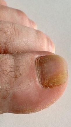 Murfreesboro Podiatrist | Murfreesboro Onychomycosis | TN | Mid State Podiatry |