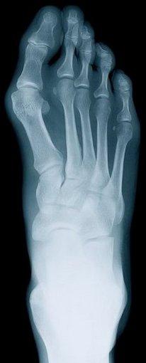 Murfreesboro Podiatrist   Murfreesboro Rheumatoid Arthritis   TN   Mid State Podiatry  