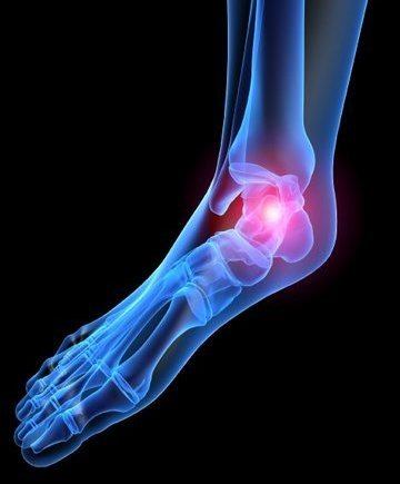 Huntington Beach Podiatrist | Huntington Beach Heel Pain/Fasciitis | CA | Eric T. Travis, DPM |