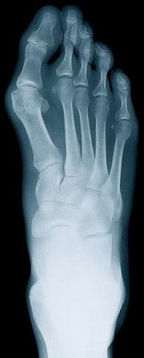 Huntington Beach Podiatrist | Huntington Beach Rheumatoid Arthritis | CA | Eric T. Travis, DPM |
