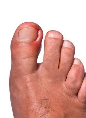 Belleville Podiatrist | Belleville Ingrown Toenails | NJ | Podiatry Associates of Belleville |