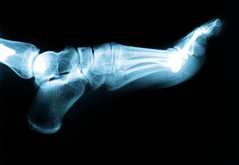 Belleville Podiatrist | Belleville Plantar Fasciitis | NJ | Podiatry Associates of Belleville |